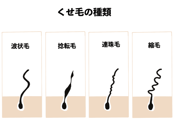 【市販品】くせ毛におすすめの「ヘアマスク&ヘアパック」TOP5!